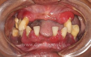 Missing front teeth replacement with fixed teeth in India
