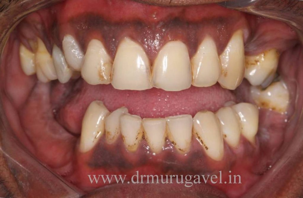 molar teeth replacement with fixed teeth in India