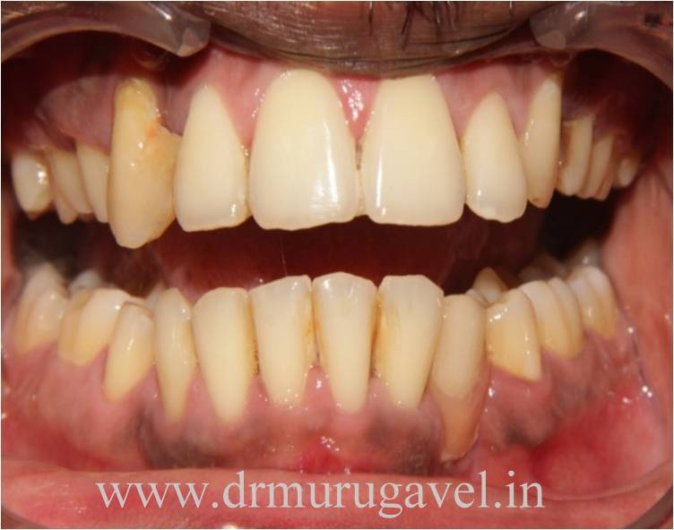lower front tooth replacement