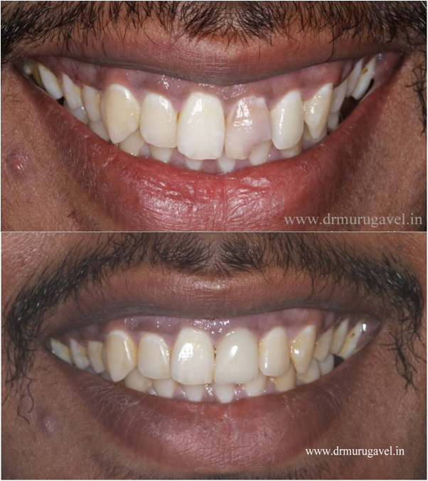 smile designing for discolored tooth in India